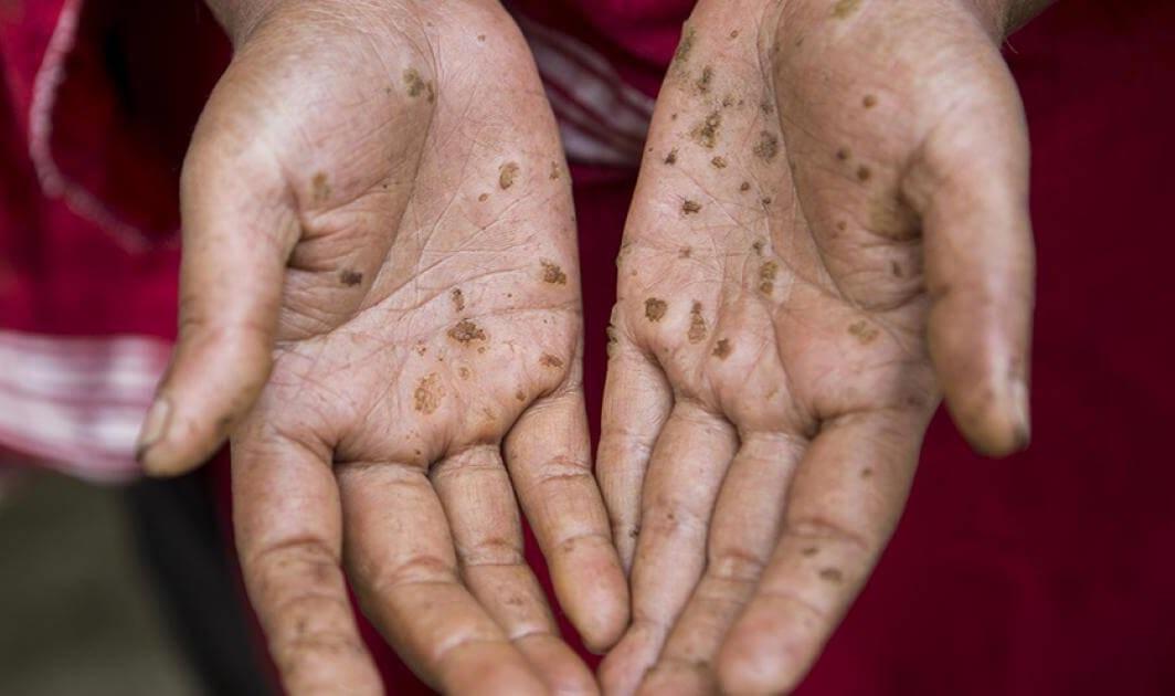 Nước nhiễm Asen: mối nguy hại và cách xử lý hiệu quả.